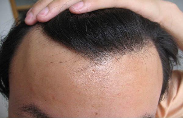 女性都有这种现象 而手术治疗脂溢性脱发的方法只