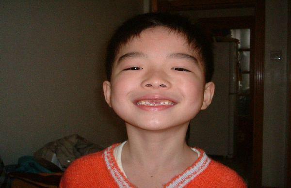 关注孩子的换牙期