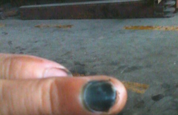 康:   现在手指甲全部变黑,淤血露头了,挺硬的.不知道指甲还能张